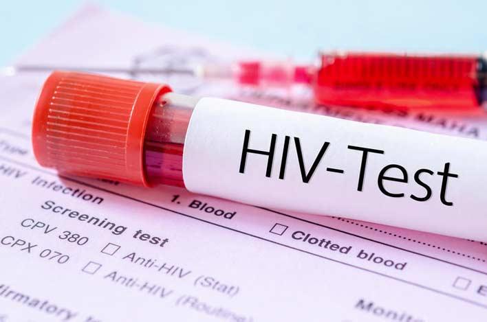 همه چیز در مورد کوکائین، HIV و هپاتیت