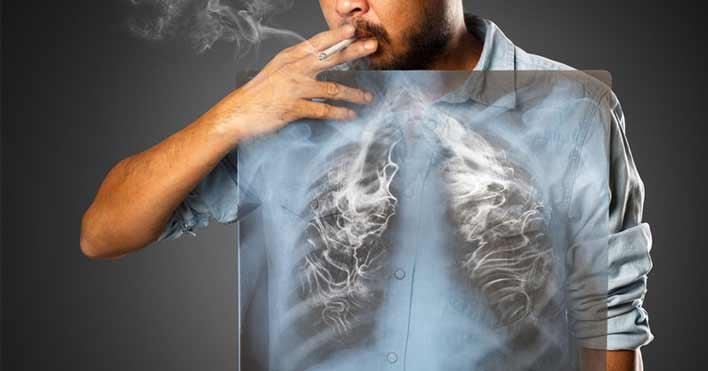 التهاب ریه ها