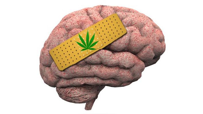 علائم مصرف ماده ی مخدر گل بر مغز